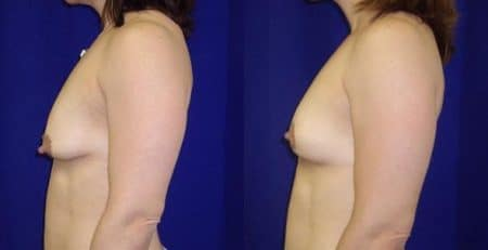 patient-11236-breast-lift-before-after-2