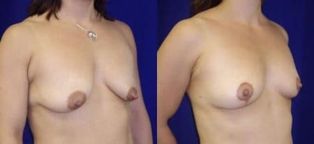 patient-11236-breast-lift-before-after