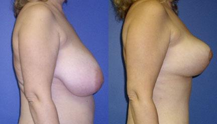 patient-11248-breast-reduction-before-after-1