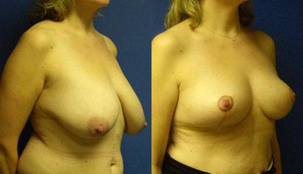 patient-11253-breast-reduction-before-after-1