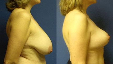 patient-11253-breast-reduction-before-after-2