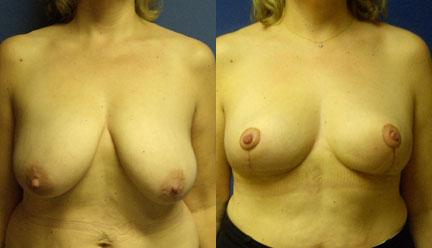patient-11253-breast-reduction-before-after