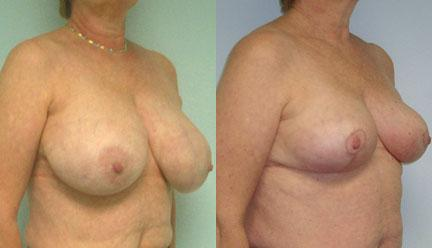 patient-11260-breast-reduction-before-after-1