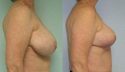 patient-11260-breast-reduction-before-after-2