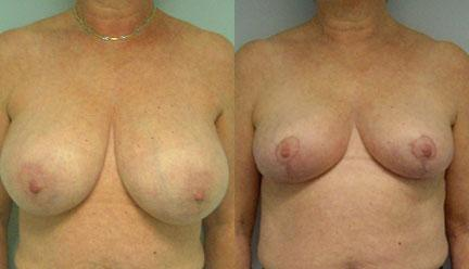 patient-11260-breast-reduction-before-after