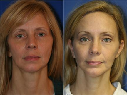 patient-11274-browlift-forehead-lift-before-after