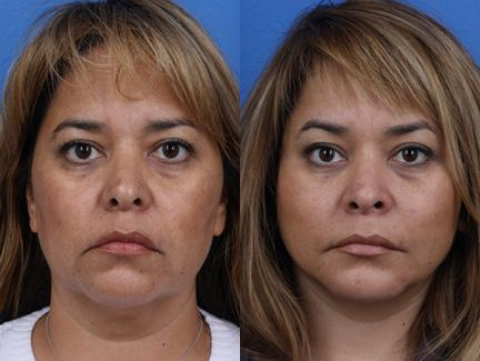 patient-11291-facelift-before-after-2