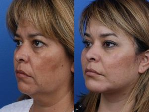 Before and after photo of excellent facelift results in Manhattan plastic surgery office.