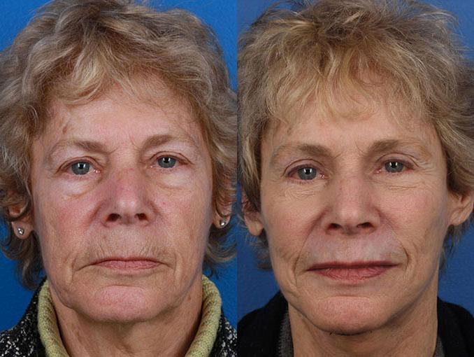 patient-11296-facelift-before-after-3