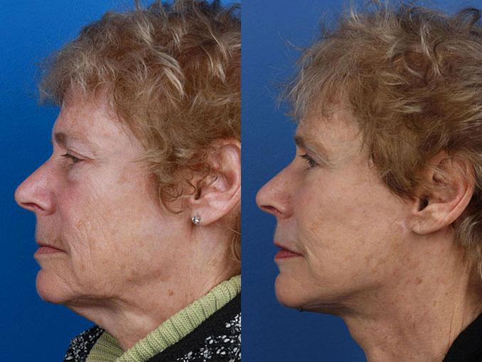 patient-11296-facelift-before-after-5