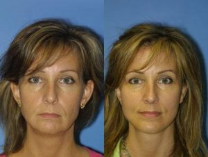 Before and after photo of facelift procedure in New York.