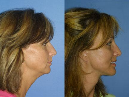 patient-11308-facelift-before-after-4