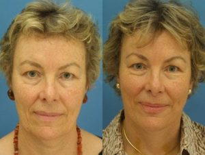 face comparison of an older woman who had facelift surgery. Her face looks much younger and her skin looks much tighter, New York, NY