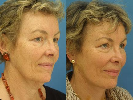 patient-11315-facelift-before-after-4
