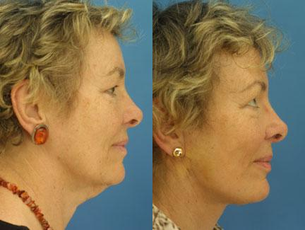 patient-11315-facelift-before-after-5