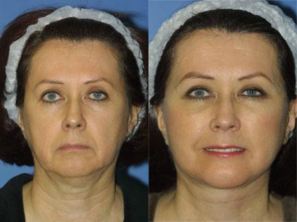 patient-11322-facelift-before-after-3