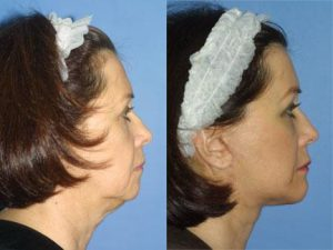 Two images comparing face of an older woman before and after facelift. Face looks much younger with no sagging or loose skin after the treatment, New York, NY