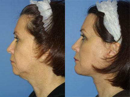 patient-11322-facelift-before-after-5