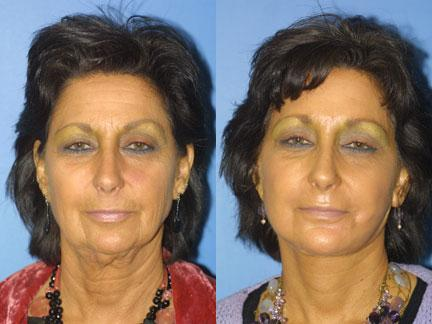 patient-11329-facelift-before-after-2