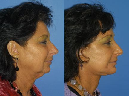 patient-11329-facelift-before-after-3