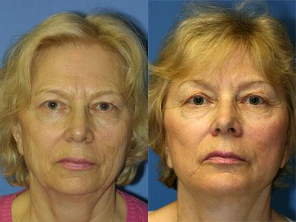 patient-11334-facelift-before-after-3