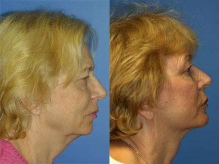 patient-11334-facelift-before-after-4