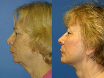 patient-11334-facelift-before-after-5