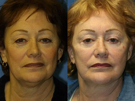 patient-11341-facelift-before-after-3