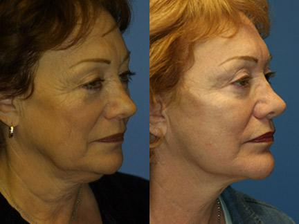 patient-11341-facelift-before-after-4