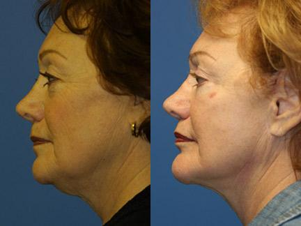 patient-11341-facelift-before-after-5