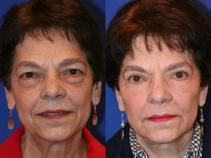 patient-11367-facelift-before-after-3