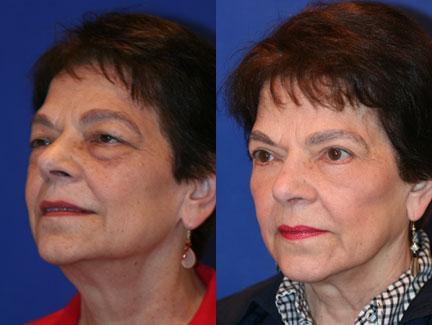 patient-11367-facelift-before-after-4