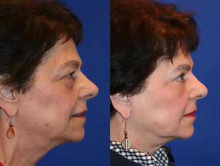 patient-11367-facelift-before-after-5