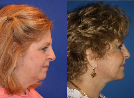 patient-11374-facelift-before-after-4