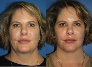 Older woman with more youthful look than before with no sagging skin, after facelift surgery, New York, NY