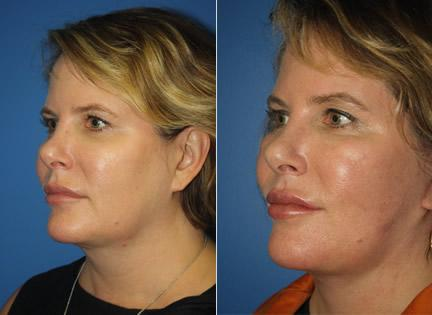 patient-11381-facelift-before-after-3