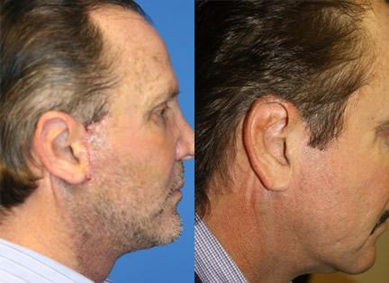 patient-11386-facelift-before-after-1