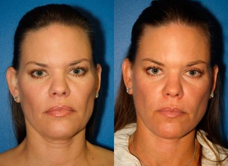 patient-11389-facelift-before-after-2