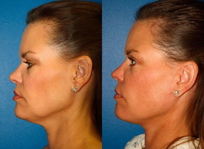 patient-11389-facelift-before-after-3