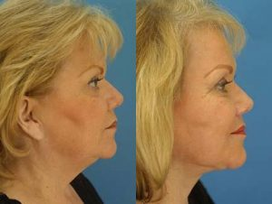 facelift before and after results by dr philip miller