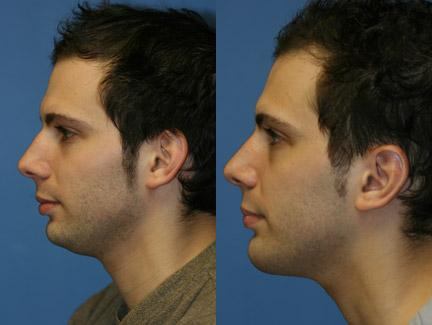 patient-11419-chin-implants-before-after-5