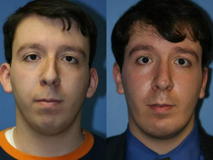 patient-11426-chin-implants-before-after-3