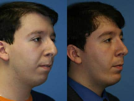 patient-11426-chin-implants-before-after-4