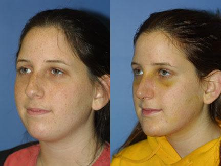 patient-11433-chin-implants-before-after-3