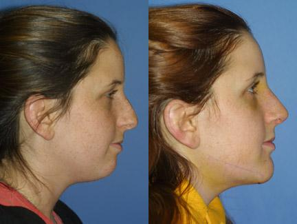 patient-11433-chin-implants-before-after-4