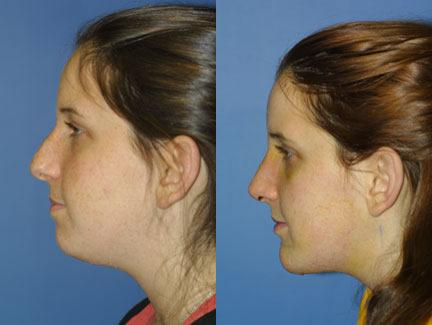 patient-11433-chin-implants-before-after-5
