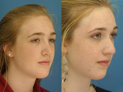 patient-11443-chin-implants-before-after-2