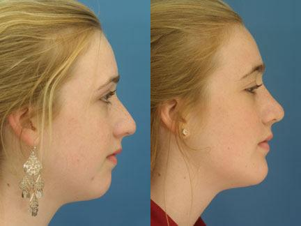 patient-11443-chin-implants-before-after-3