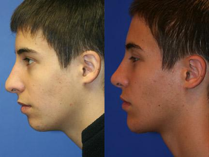 patient-11448-chin-implants-before-after-7