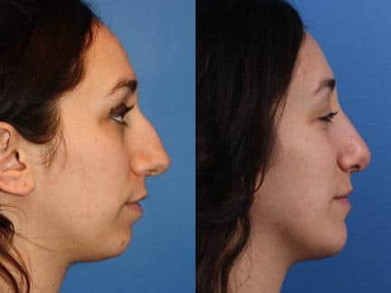 patient-11457-chin-implants-before-after